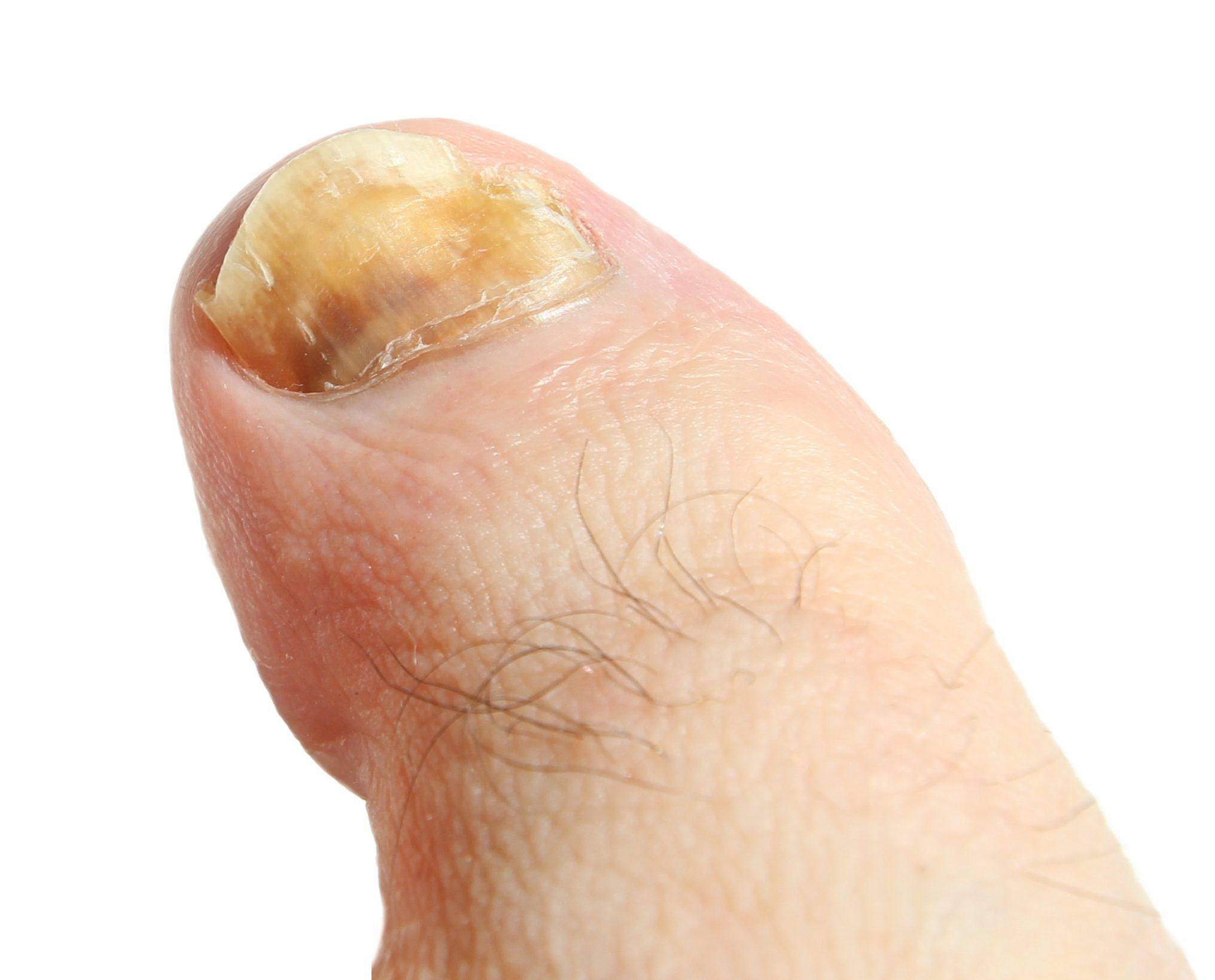 Traitement De Lonychomycose Ou La Mycose Des Ongles Le
